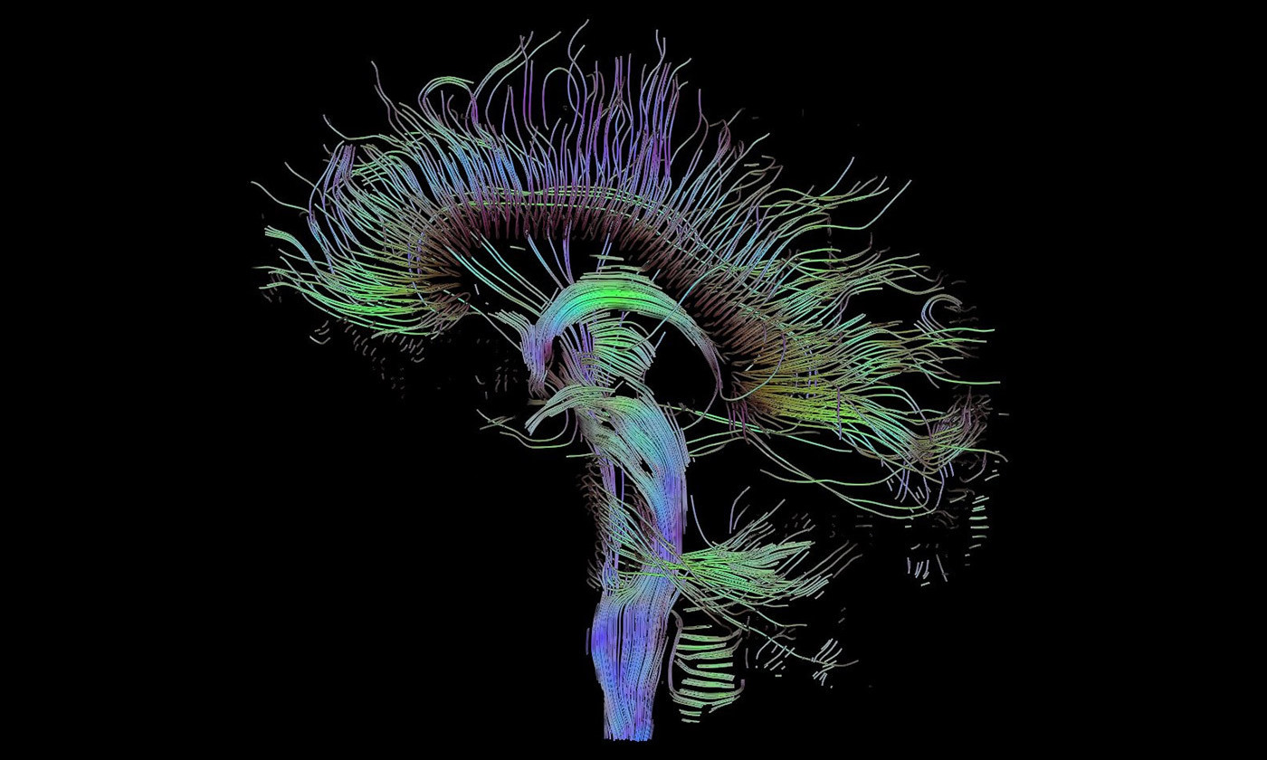 How Brain Stimulation Can Boost Memory If Paired With Learning