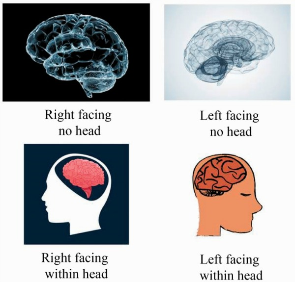 Turning the Other Lobe: Directional Biases in Brain Diagrams